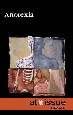 Anorexia By Kiesbye, Stefan (EDT)